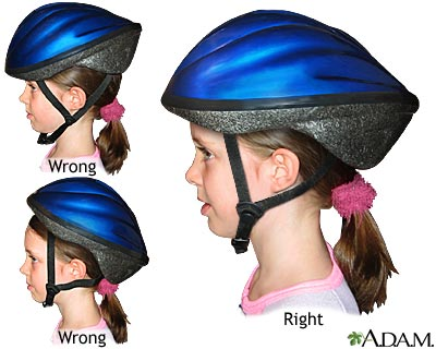The suggested and proper way to wear one.